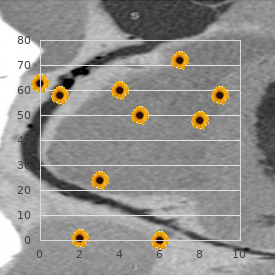 Pulmonary branches stenosis
