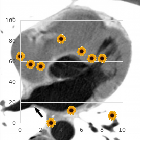 Hydrocephalus growth retardation skeletal anomalies