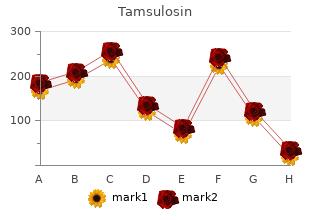 generic 0.2mg tamsulosin overnight delivery