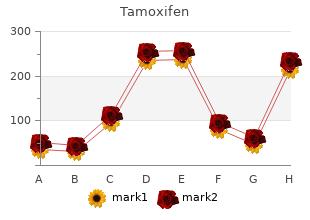 buy tamoxifen on line amex