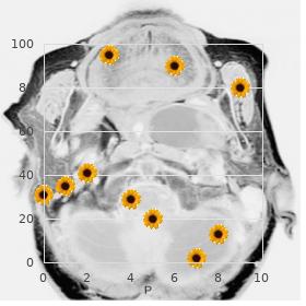 Femur fibula ulna syndrome