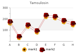 generic 0.2 mg tamsulosin free shipping