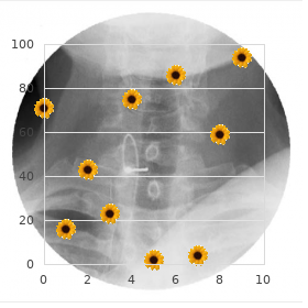 Segmental vertebral anomalies