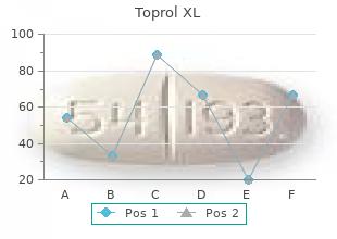 buy cheap toprol xl 100mg line