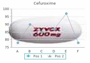 order cefuroxime 250mg on line