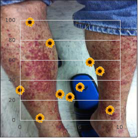 Gonadal dysgenesis XY type associated anomalies