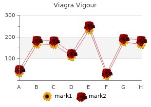 buy viagra vigour on line amex