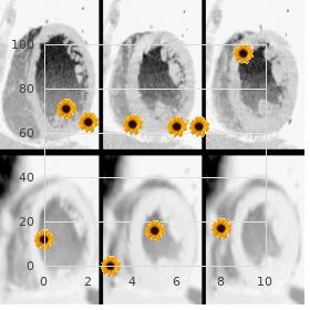 Rhabdomyosarcoma, alveolar